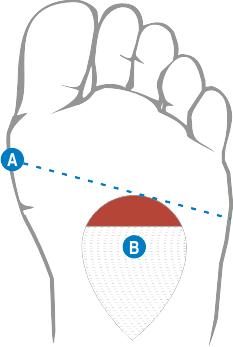 Właściwe miejsce peloty metatarsalnej na stopie